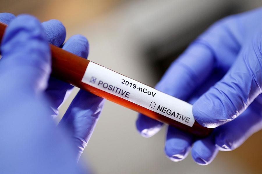 विश्वभर कोरोना संक्रमण दर फेरि उच्च विन्दुमा, एकैदिन दुई लाख २१ हजार संक्रमित